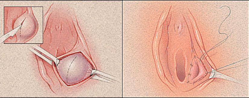 Bartholin Bezi Enfeksiyonu ve Tedavisi