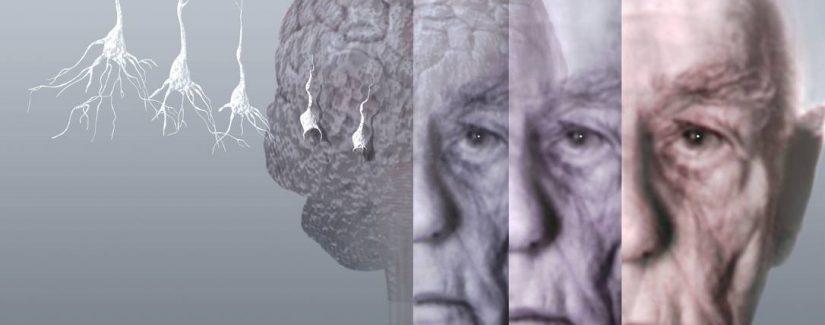 Demans (Bunama) Hastalığı Nedir? Belirtileri ve Nedenleri Nelerdir